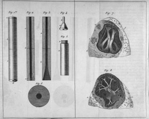 Black and white illustration of Laennec's stethoscope.